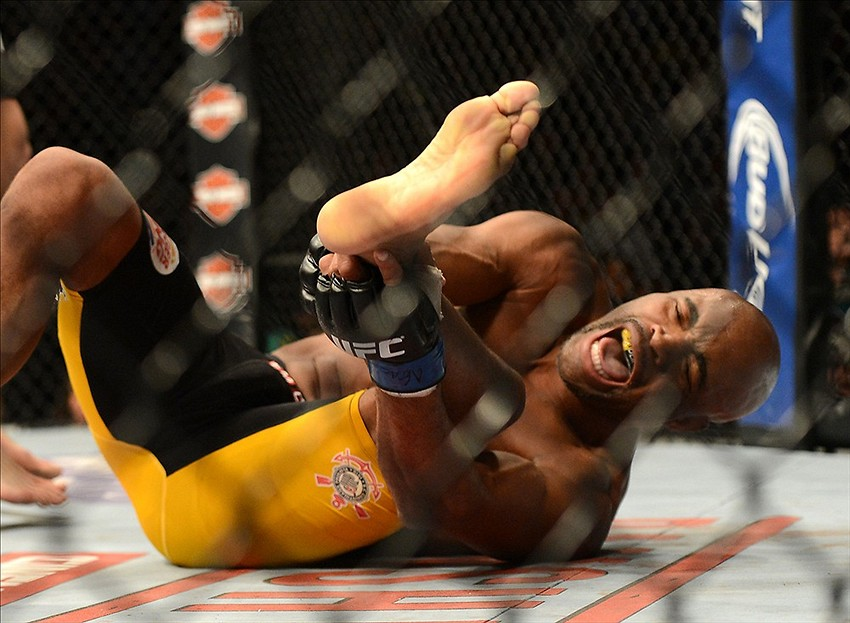 Dr. Sanders: Anderson Silva may not throw a leg kick for ...