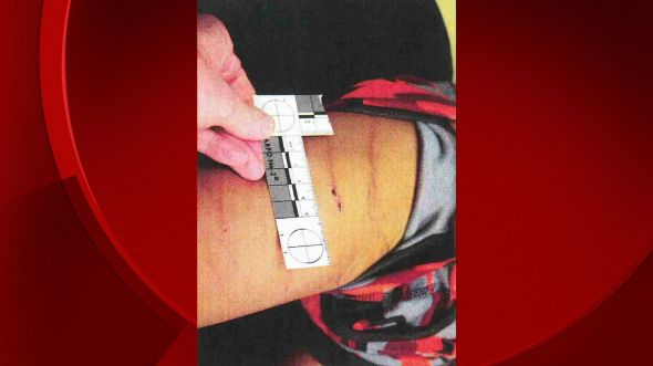 Photos released of injuries to child adrian peterson allegedly abused
